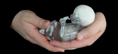Francis LeBouthillier, image of fetal skeleton in hands_research related work