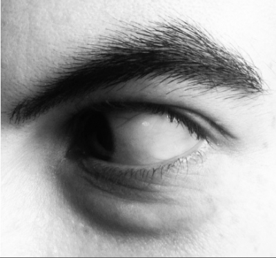 Photograph of a human eye looking to the left