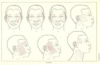 Drawings of faces detailing markings