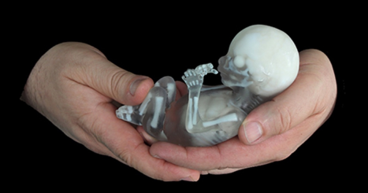 image of the Fetus model
