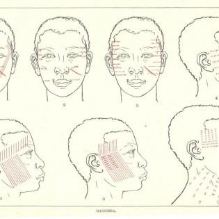 Drawings of faces detailing markings