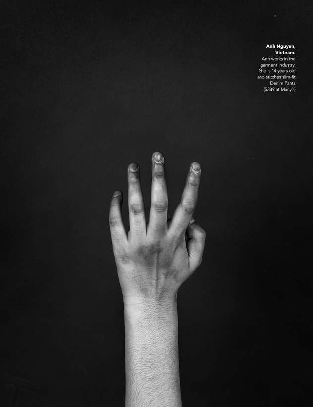 A photograph of a hand that looks injured, calloused and scarred.